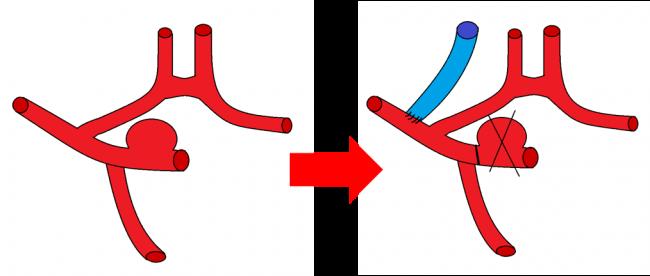 Оптимизация транспортных функций сосудистых анастомозов методами роевого интеллекта