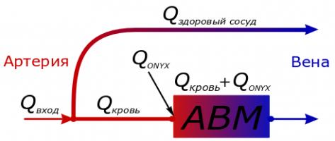Математическое моделирование режима эмболизации АВМ с перетоками на основе модели двухфазной фильтрации